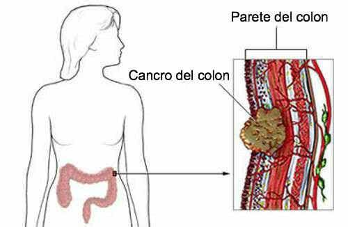 Cancro del colon-retto, ecco i sintomi da non trascurare