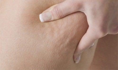 Infuso contro la cellulite: 3 ricette efficaci