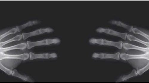 Scrocchiare le dita: cosa succede alle ossa?
