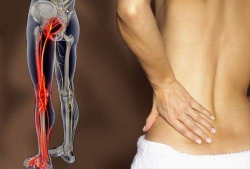 Come trattare la sciatica e la lombalgia
