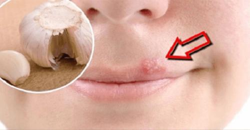 Rimedi fatti in casa per alleviare velocemente l'herpes labiale