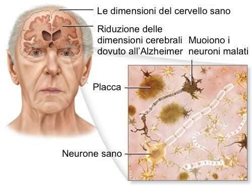 Morbo di Alzheimer: 5 consigli per contrastarlo