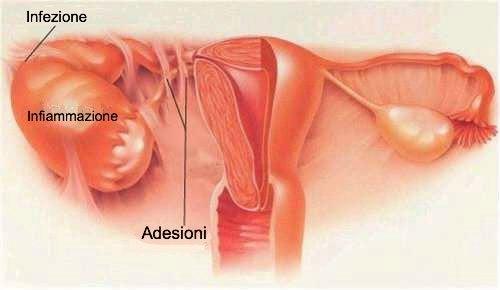 PID, la malattia infiammatoria pelvica nelle donne