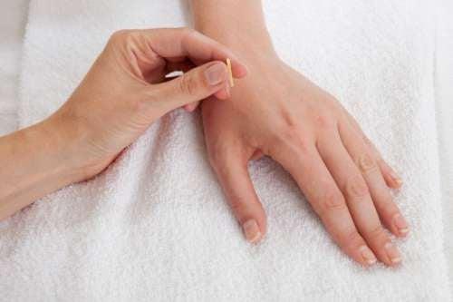 agopuntura con le dita per perdere peso