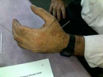 Agopuntura su mano