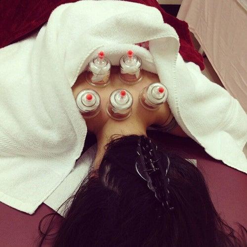 cupping per trattare il dolore alla schiena