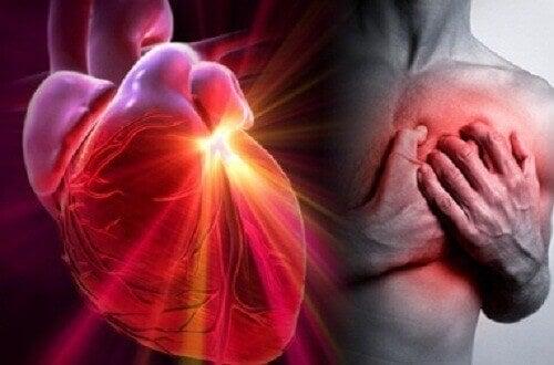 Malattie cardiovascolari: infarto, arresto cardiaco e ictus