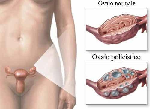 Sindrome dell'ovaio policistico: piante e alimentazione