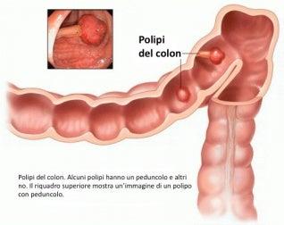 polipo-colon-500x396