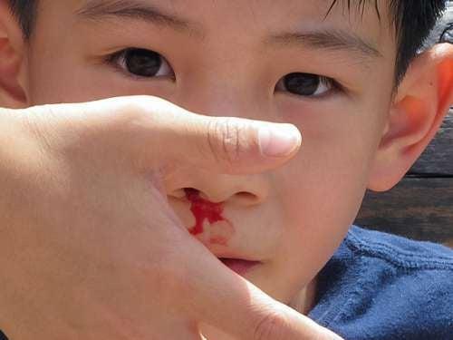 Bambino perde sangue al naso