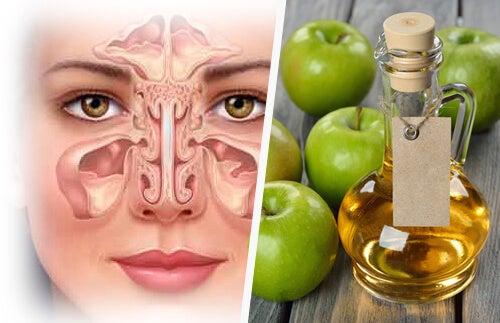 Seni paranasali e aceto di mele