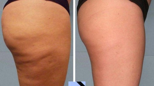 Trattamenti anti-cellulite da fare a casa