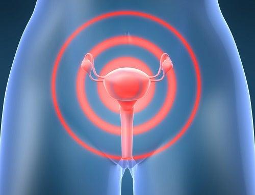 Cosa sono i fibromi e come trattarli