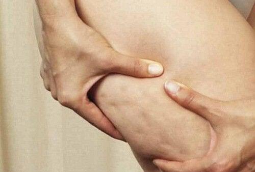 Alimenti che aumentano la cellulite