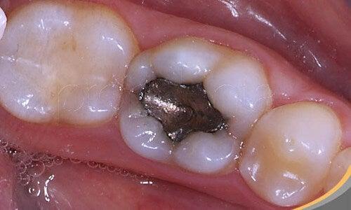 Rischi per la salute delle otturazioni di amalgama dentale