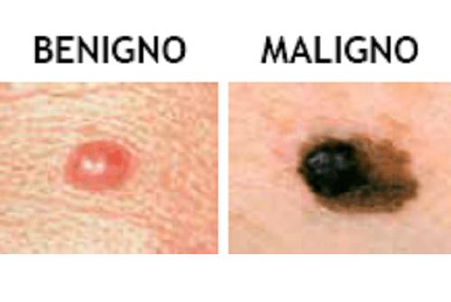 11 sintomi del cancro: i nei