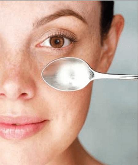 Occhiaie