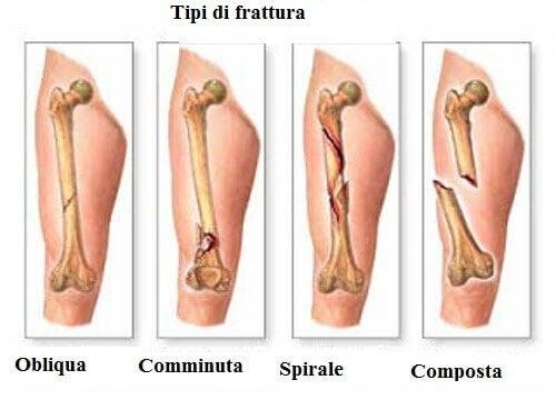 Tumore alle ossa primario: sintomi da conoscere