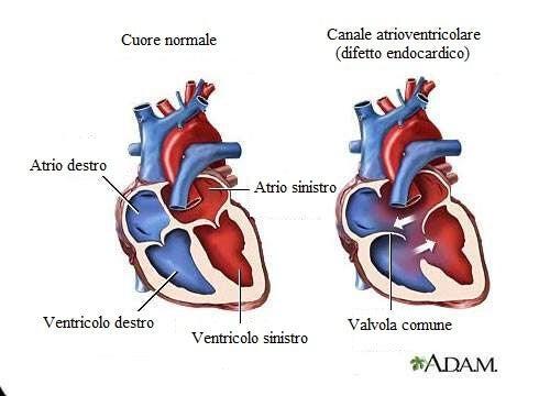 7 sintomi che indicano un soffio al cuore