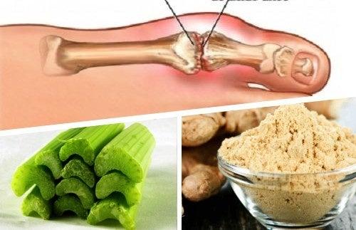 como tratar la gota de manera natural plantas medicinais para curar acido urico productos para acido urico