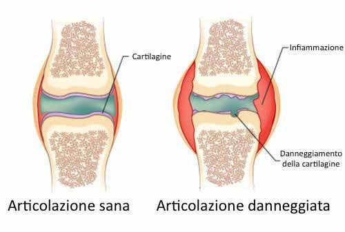 Dolori dell'artrite: il perfetto rimedio naturale