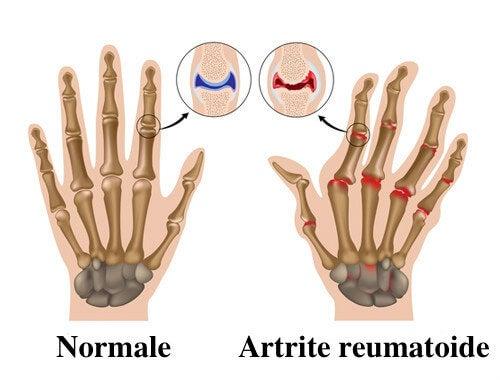 Artrite reumatoide: 7 consigli per alleviarla