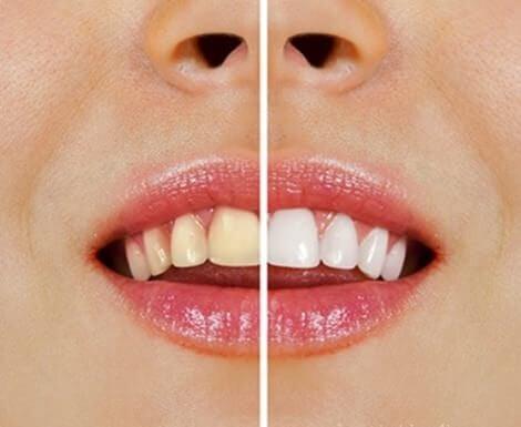 Alimenti che ingialliscono i denti. Cosa fare?