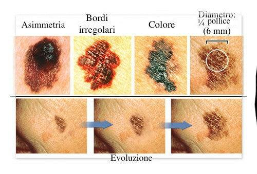 Come identificare i primi sintomi del melanoma