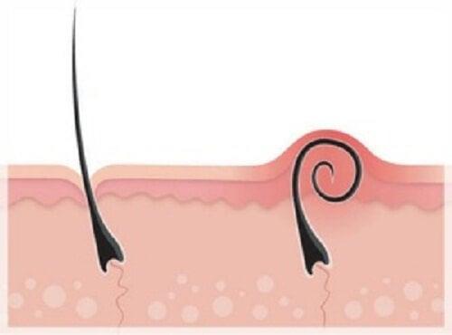 Peli incarniti dopo la depilazione? Ecco come combatterli