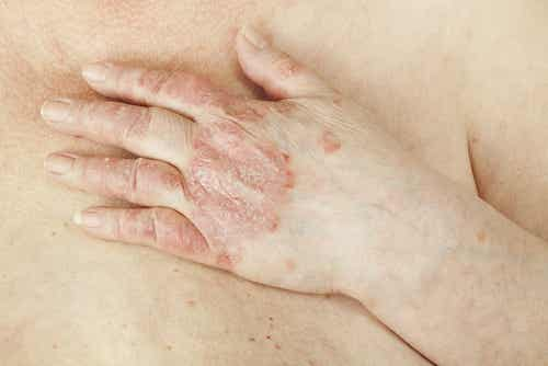 Curare la psoriasi in modo naturale è possibile?