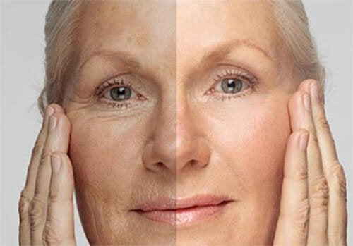 Quanti anni ha la vostra pelle? Ecco come ringiovanirla!