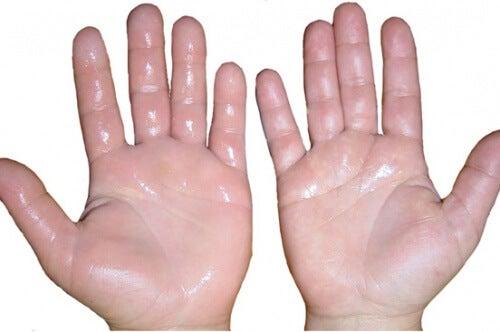 6 rimedi casalinghi per disinfiammare le mani