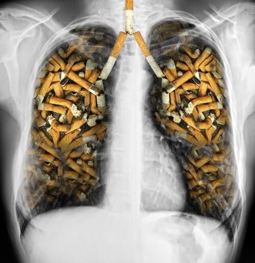 Magneti di zerosmoke in una farmacia