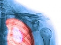 Apparato-respiratorio-problema-polmonare-500x393