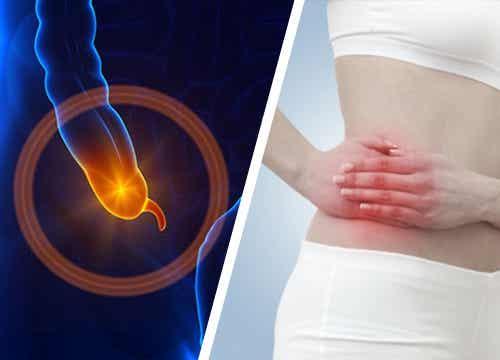 Appendicite acuta: cos'è e perché si manifesta