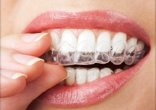 Bruxismo strategie per smettere di digrignare i denti