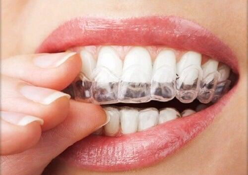 4 tecniche per non digrignare i denti