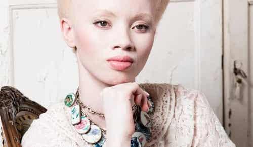 Albinismo: il commovente caso di Thando Hopa