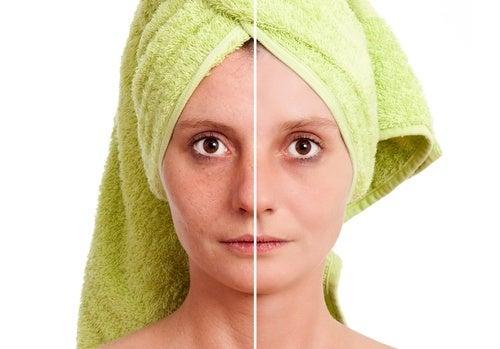 benefici tonico contro imperfezioni pelle