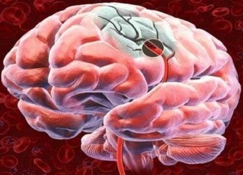 5 modi di migliorare il flusso sanguigno del cervello