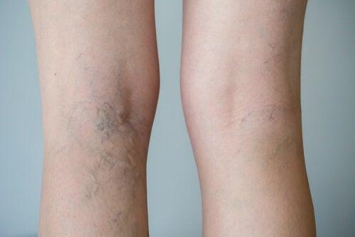 Circolazione nelle gambe: alimenti che la favoriscono