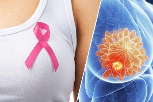 Nuova tecnica per individuare in modo più esatto il tumore al seno