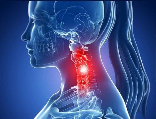 Il collo fa male fortemente che fare