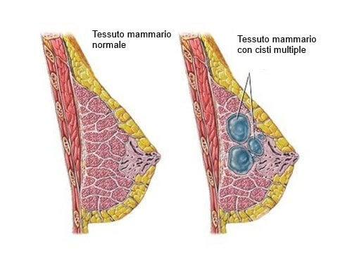 Come prevenire ed individuare le cisti al seno
