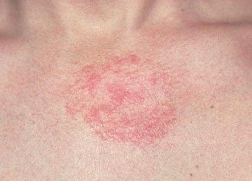 Lunguento di soccorritore per eczema