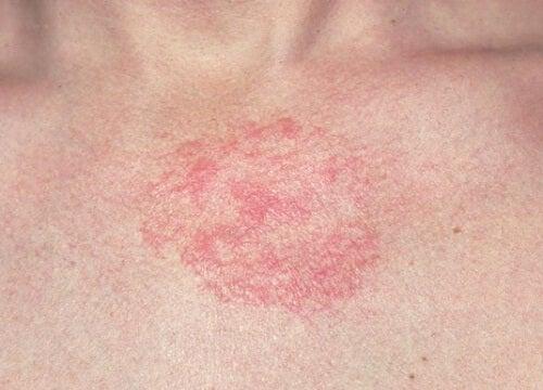 5 rimedi contro la dermatite da preparare in casa