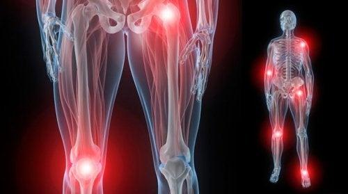 Dolori alle articolazioni: dove e perché ti colpiscono