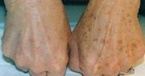 Attenuare le macchie della pelle con piante medicinali