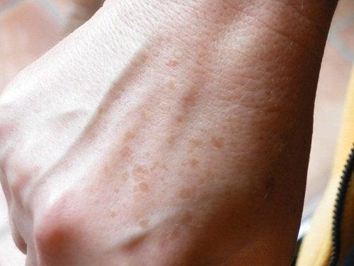 Macchie sulla pelle: eliminatele con rimedi fatti in casa