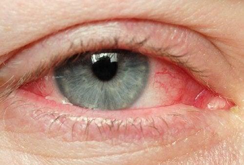Occhi irritati: i migliori rimedi naturali